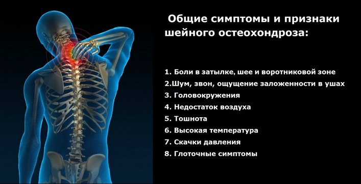 nyaki osteochondrozishoz felírt gyógyszerek