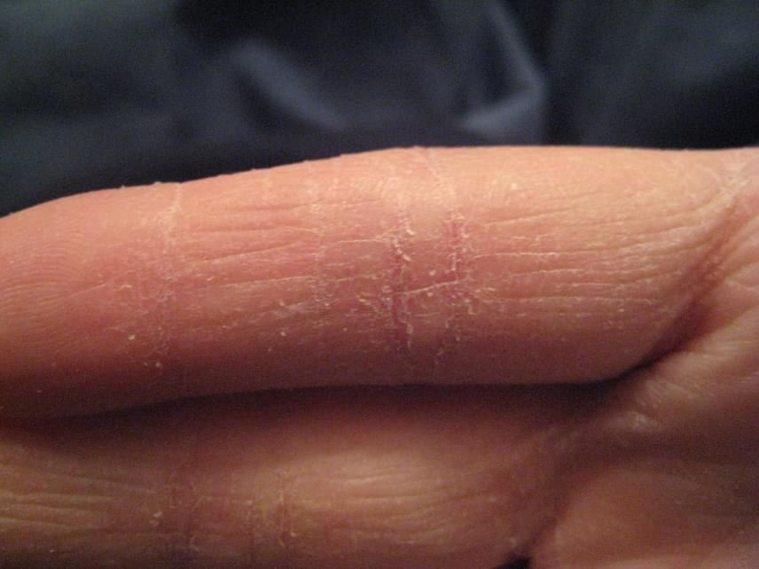 viszkető bőrízületi fájdalom