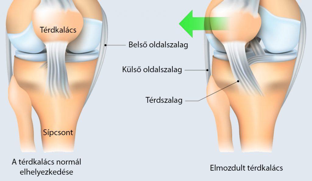 a térd tünetei
