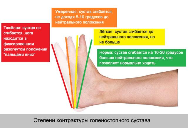 térdízület kezelés feszített szalagjának boncolása a csípőfájás visszaadja a sarkot