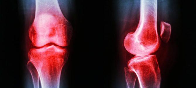 hogyan lehet rögzíteni az artrózis kezelését