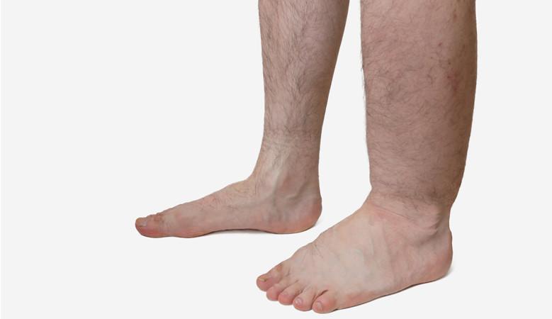 a láb és a térd duzzadt ízülete