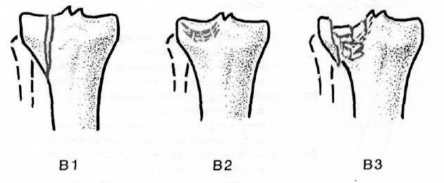 a térdízület kezelésének repedt condyle