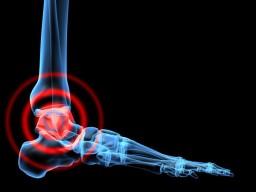 aki a bokaízület szinovitist kezeli