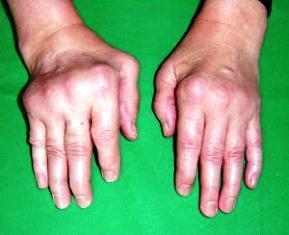ízületi porcépítő készítmények ízületi fájdalom és kötőhártya-gyulladás