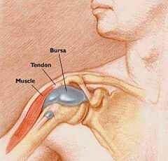 a térd bursitisz ízületi gyulladása