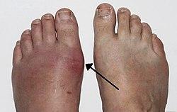 milyen betegség a köszvény aki a bokaízület szinovitist kezeli