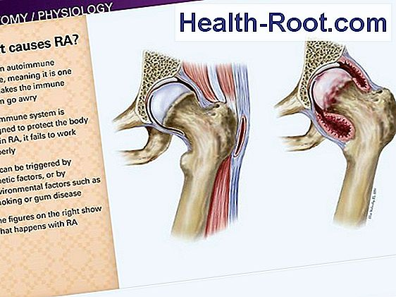 ujjak rheumatoid arthritis, mint kezelni)