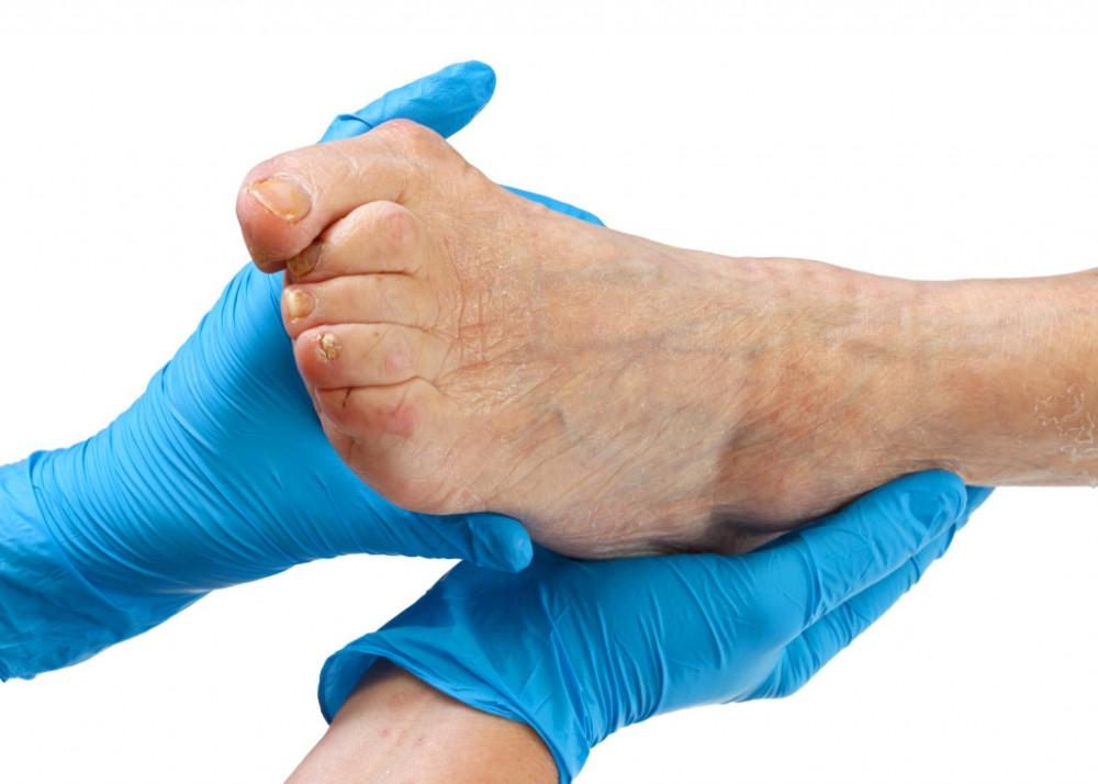 artrózis kezelése ózonterápiával megvesz chondroitin ízületi balzsamot