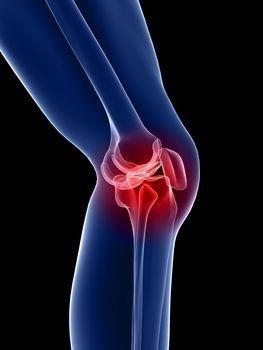 a térdízület mediális meniszkuszának elülső kürtének károsodása láb artrózis zselatin kezelés