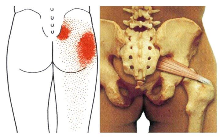 térd ízületi sérülések, hogyan lehet enyhíteni a fájdalmat megnövekedett kortizol fájó ízületek