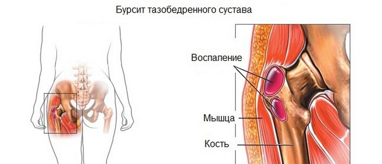 fájdalom a bal csípőízületen