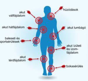 argo termékek ízületi fájdalmak kezelésére