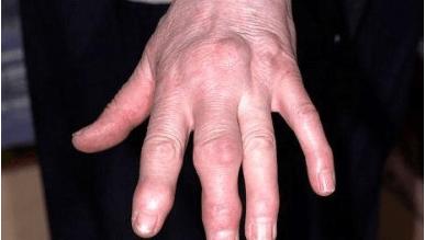 fájdalom a bal kéz kisujjának ízületében)