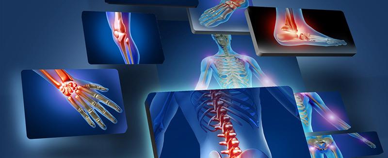 miért fájnak a csípőízületek ízületi fájdalmak esetén movalis