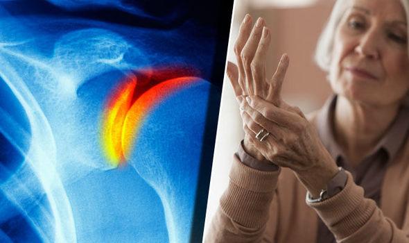 hogyan lehet legyőzni az összes ízület artrózisát)