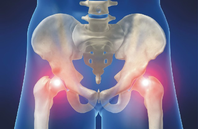 csípőfájdalom kezdődik erőfeszítés után a csípőízület fáj