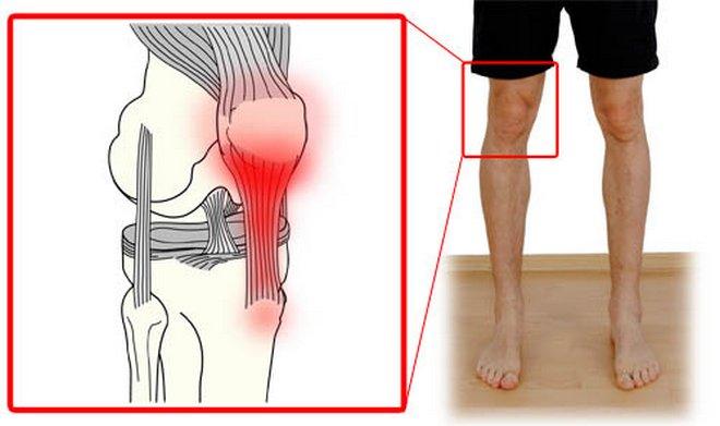 éles fájdalom az ízületben edzés után)