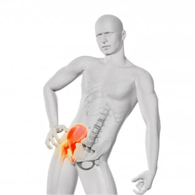 A csípőízület subluxációjának kezelése gyermekeknél és felnőtteknél