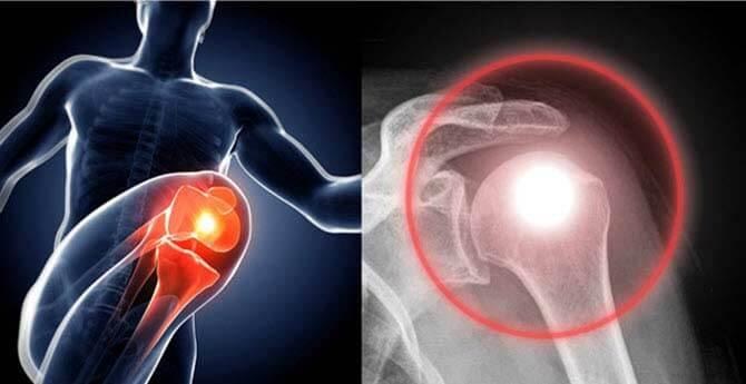 artrózis tünetei