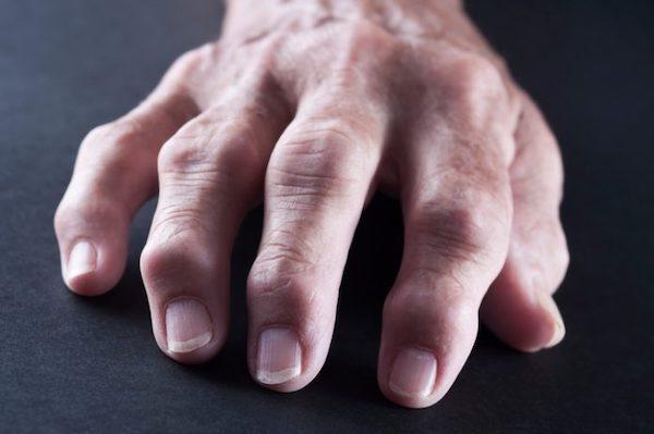 zsibbadás és fájdalom a kéz ízületeiben