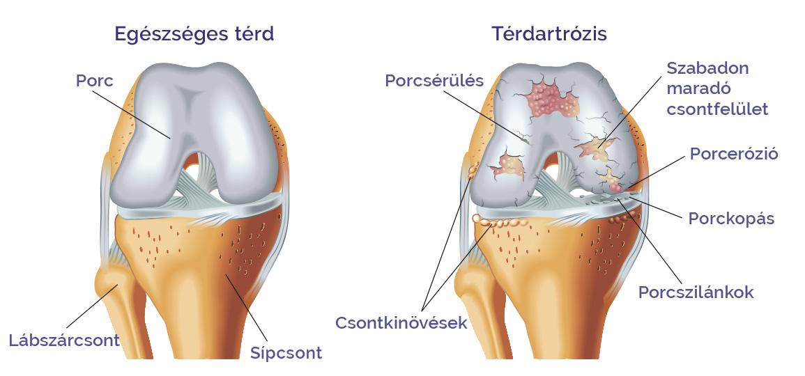 osteotomia artrózis kezelésében