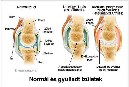 a második fokú csípőízület artrózisának kezelése kiterjedt artrózis és kezelés