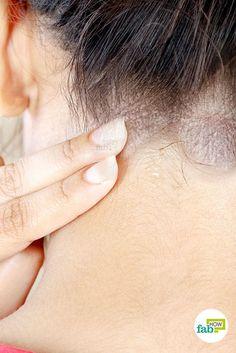 ízületi fájdalom dermatitis