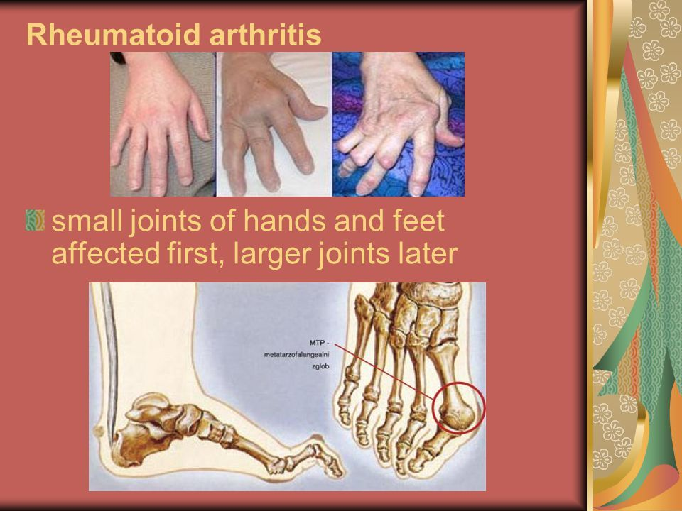 ujjízület fájdalom a kezét stroke után)