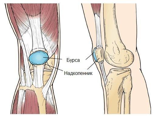 Hatékony módszerek a közös artrosz kezelésére