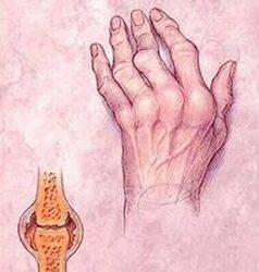 merev ízületek rheumatoid arthritisben