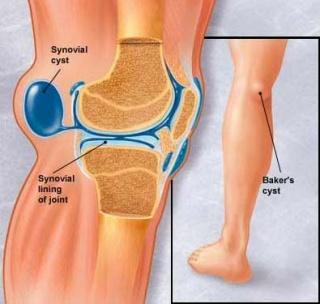a bal térdízület kenőcsének artrózisa fáj a jobb kéz és a csukló ízületei