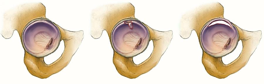 a csípőízület fájdalma az ágyékban jelentkezik a vállízület károsodásának típusai
