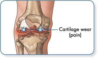 hogyan kell kezelni a csuklóízület osteoarthrosisát