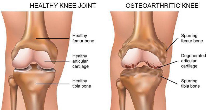 térdízület törés térd artritisz szindrómák