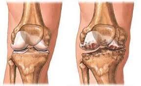 amelyből megjelenik a vállízület artrózisa