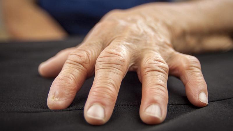 arthrosis kezelés üzbegisztánban)