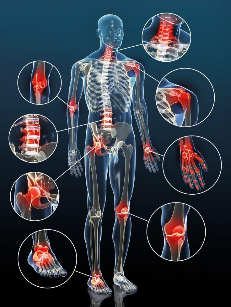ízületi fájdalom osteochondrosisból)