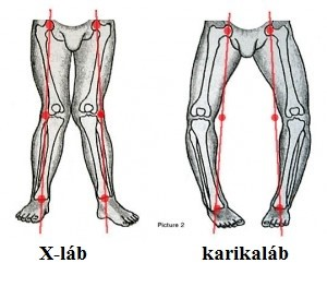 a lábfej lábfejének artrózisa)