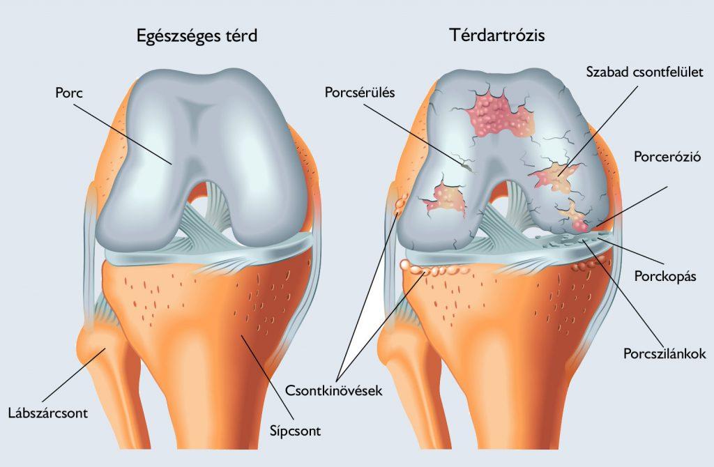 térdízületek duzzanata artrózisos kezeléssel)