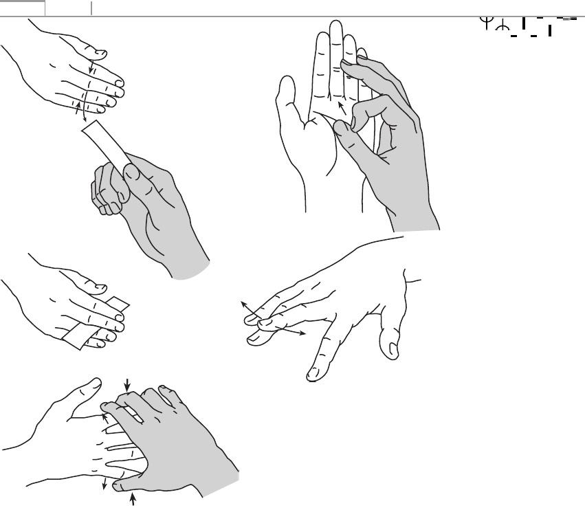 a 3. fokú kéz disztális interfalangeális ízületei artrózisa