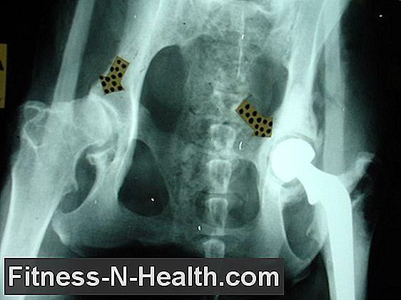 csípő coxarthrosis artrózisa hogyan kell kezelni)