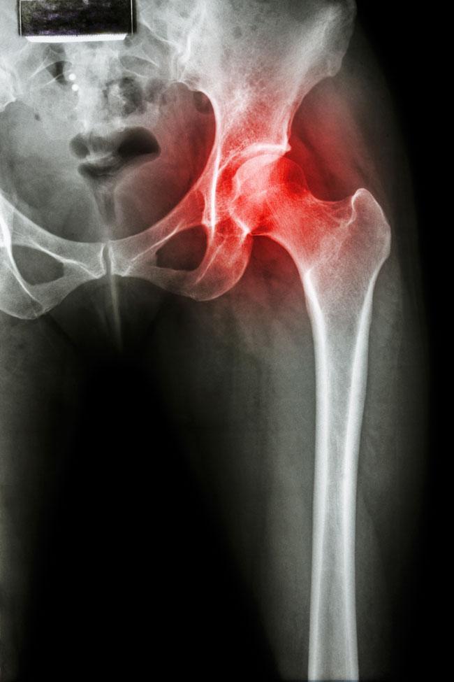 fájdalmat okoznak a csípőízületben hipotermia után az ízület fáj