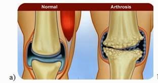 ízületi artrózis 1 fok)