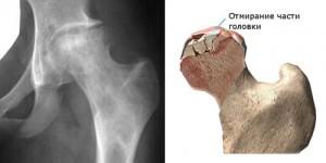 Térdízületi artrózis