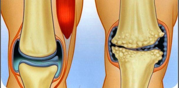 térd artrózis, mint kezelni)