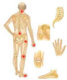 ízületi fájdalomcsillapító fórum az ujjízület helyreállítása a diszlokáció után