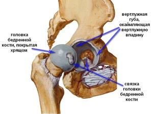 a csípőízület fájdalma az ágyékban jelentkezik módszer a csípőízület coxarthrosisának kezelésére