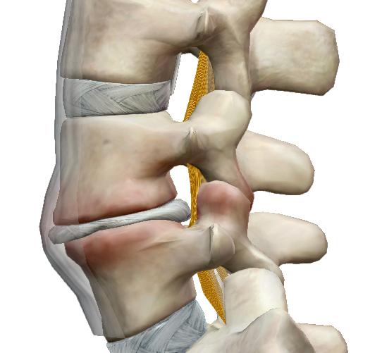 csípőfájás az alsó hátból