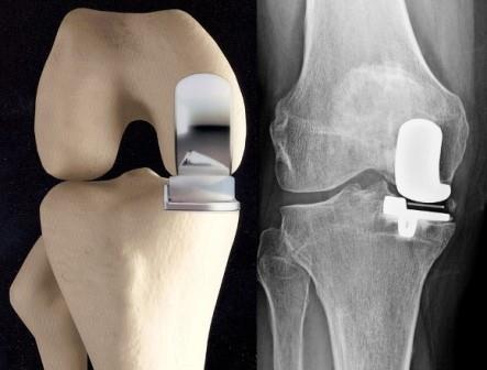 túlsúly térd artrózisával